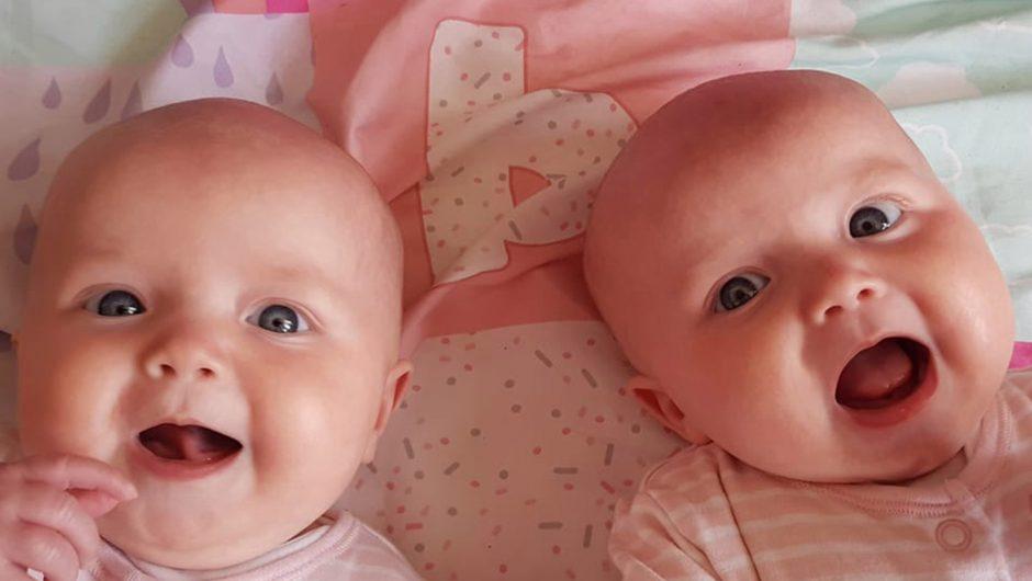 Twins stump doctors after one suffers coronavirus-linked illness