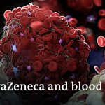 """""""Clear link between AstraZeneca and rare blood clots""""   DW News"""
